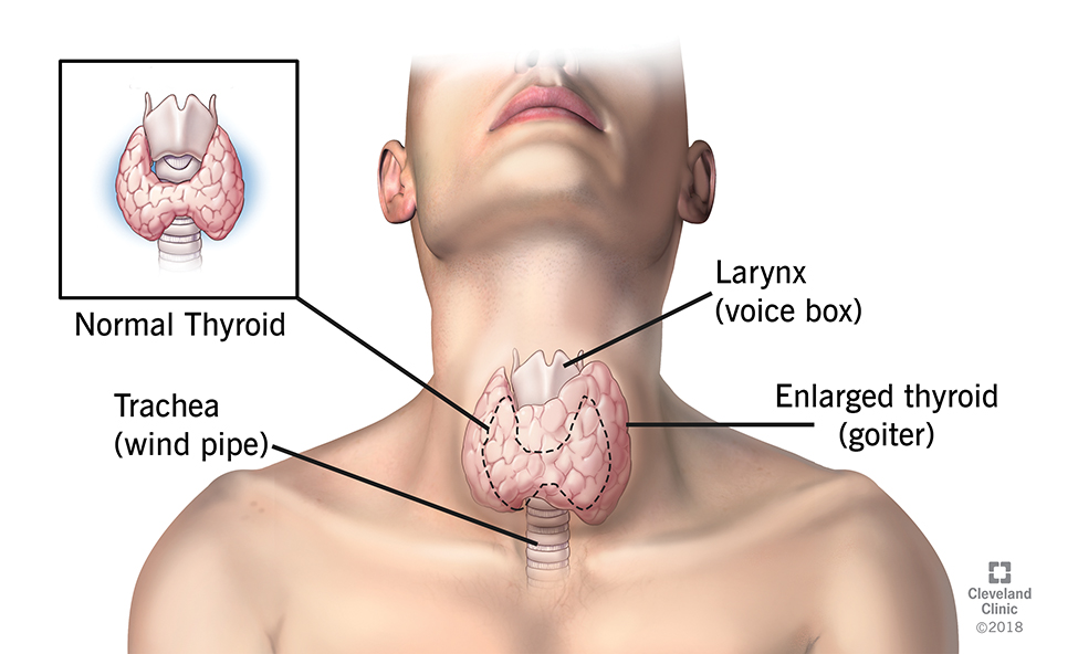 Do you know your thyroid?